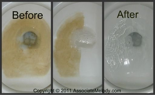 Toilet Stain Remover Diy