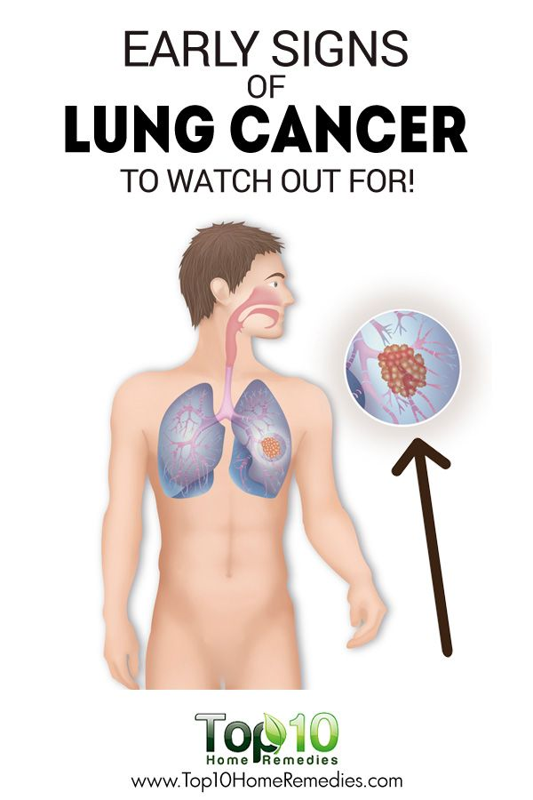 10 Early Signs of Lung Cancer You Must Watch Out!