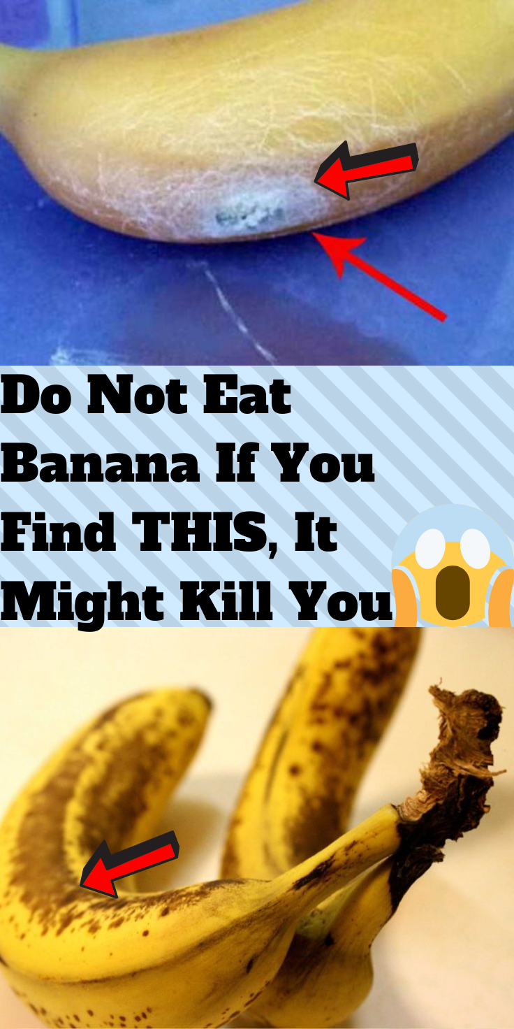 Do Not Eat Banana If You Find This It Might Kill You Do Not Eat Funny Comments Eat