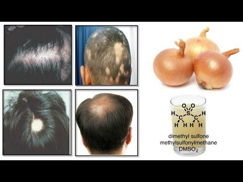 Onion and hair growth - How to use onion juice the right way to prevent  hair los_2016 - YouTube   Onion juice for hair, Hair regrowth, Grow hair