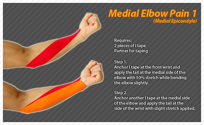 tennis elbow taping instructions