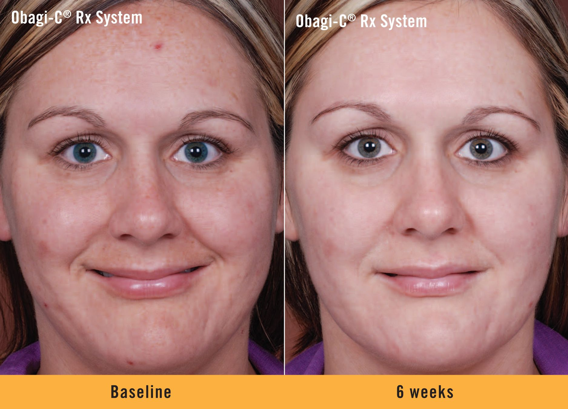 See How The Obagi C Rx System Improved The Appearance Of