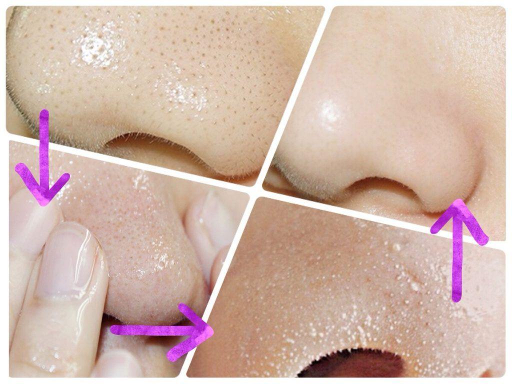 栓 取り 方 の 角 鼻