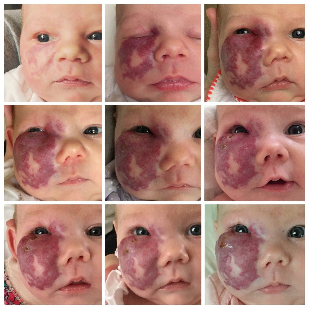 Hemangioma in a newborn