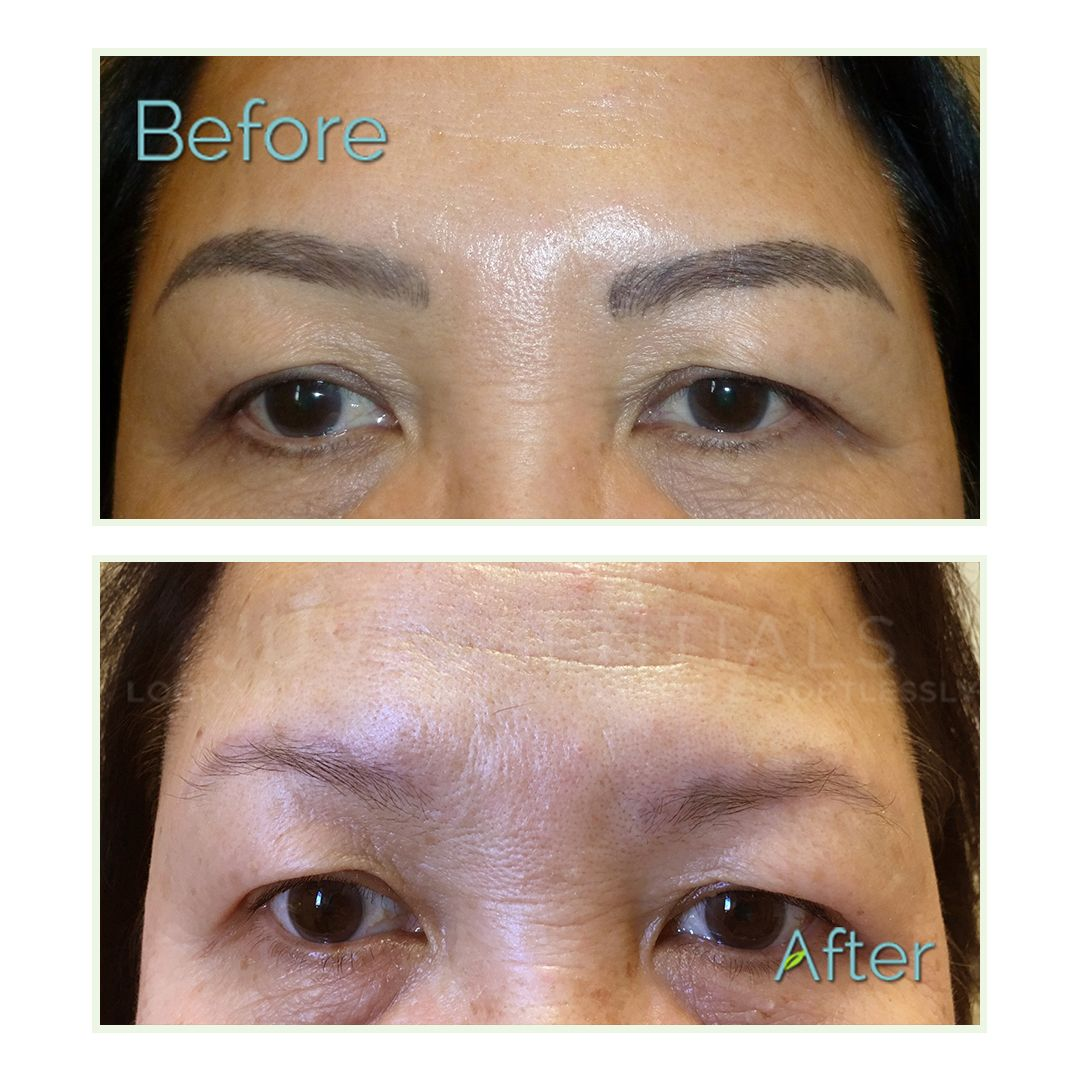 Unhappy with your microblading? Get a clean slate for your