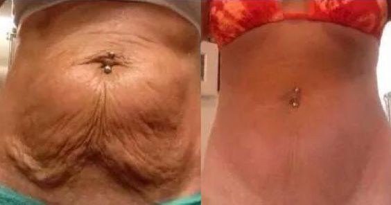 7 Natural Ways To Tighten Saggy Skin After Extreme