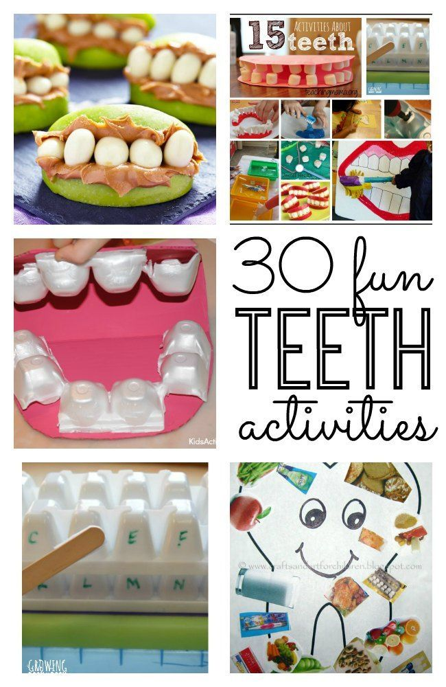 for Healthy Teeth - Great tips, games and activities Dental Health Month! Great tips for teaching your kids about their teeth and super creative teeth crafts and teeth activities for kids. Great for toddler, preschool, kindergarten and elementary age kids!Dental Health Month! Great tips for teaching your kids about their teeth and super creative te...