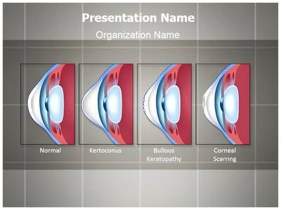 Check out our professionally designed and world class check out our professionally designed and world class ophthalmology corneal conditions ppt template toneelgroepblik Gallery