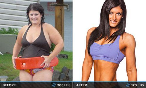 surgeries to loss weight in stomach