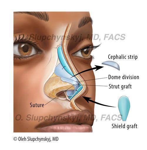 plastic surgery benefits essay