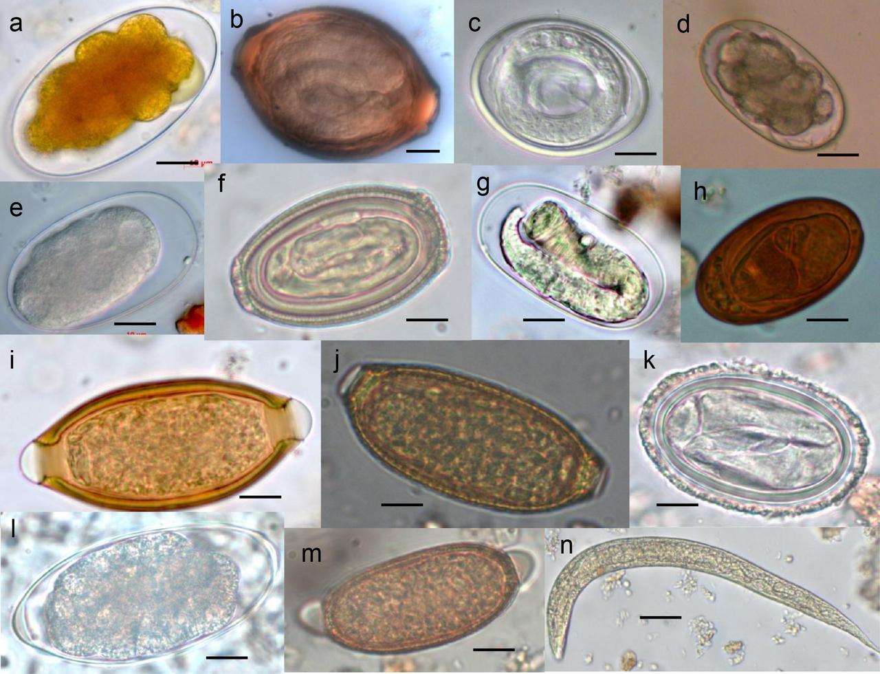 Helminth nematode worms. Helminths parasitic worms. Parasitic helminths glycans.