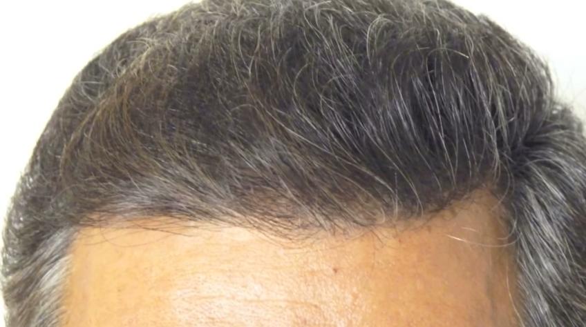 fue hair transplant result 1200 grafts dense packing hlc https www youtube com watch v dkqlgwxtwgc