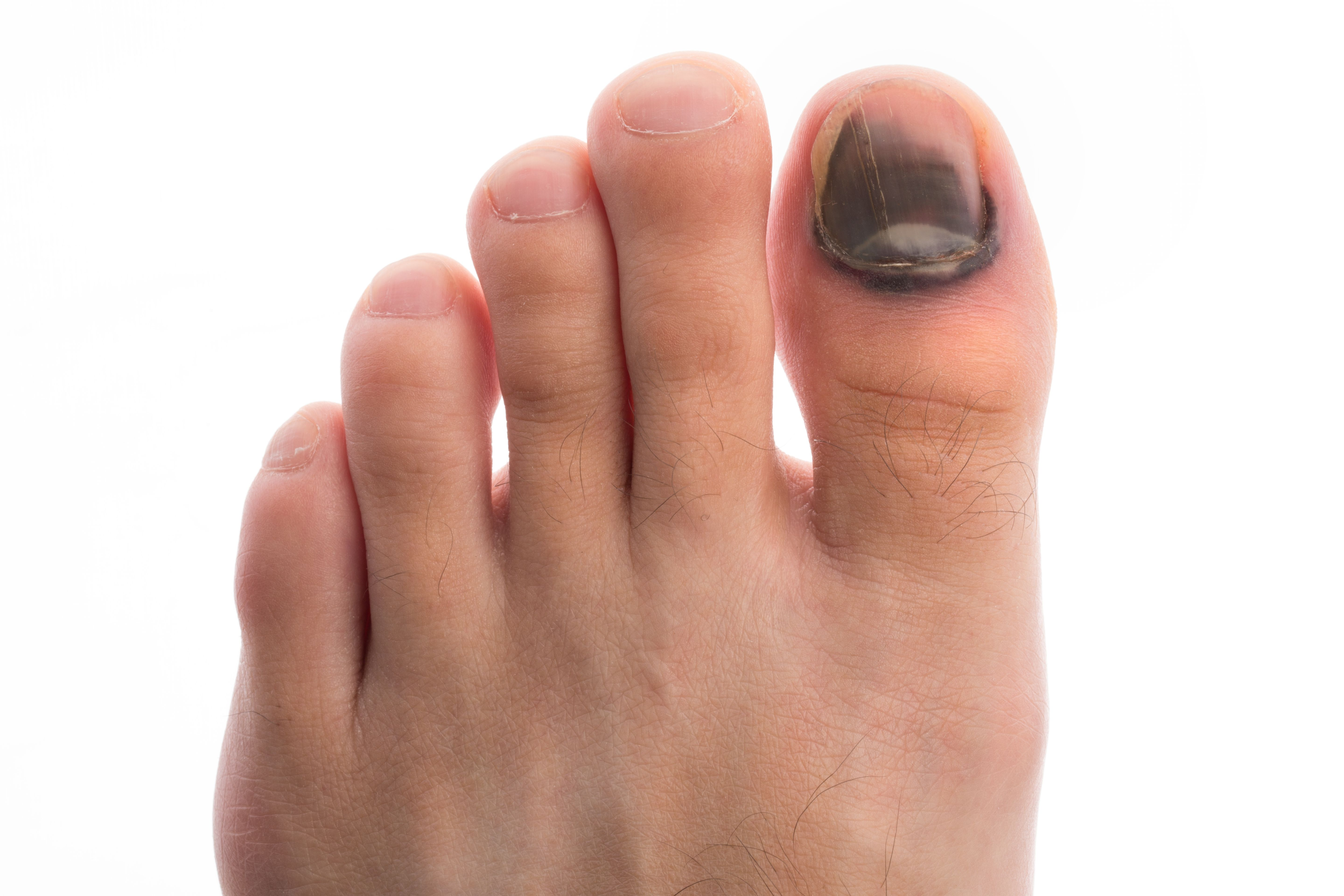 Exactly What To Do If Your Toenail Falls Off | Health and fitness ...