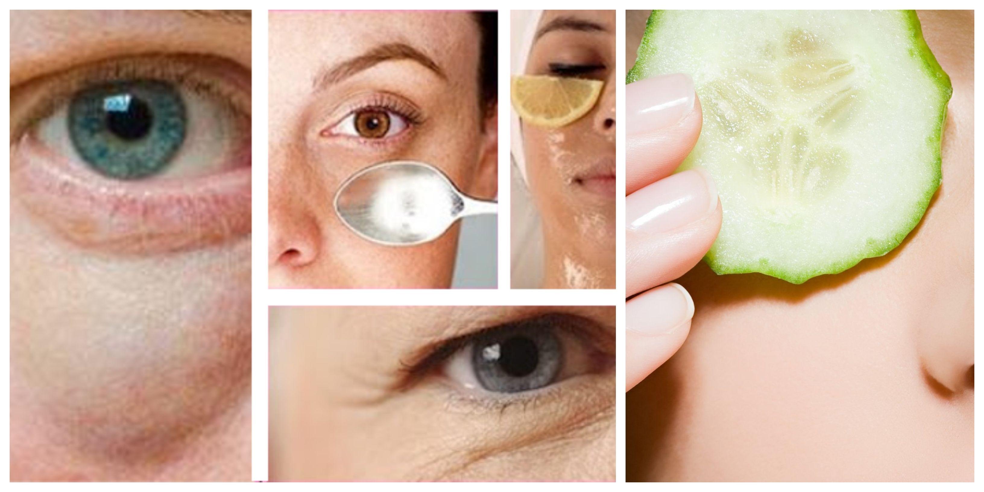 Dunkle Augenringe Entfernen Hausmittel Helfen Naturlich Augenringe Entfernen Dunkle Augenringe Hausmittel