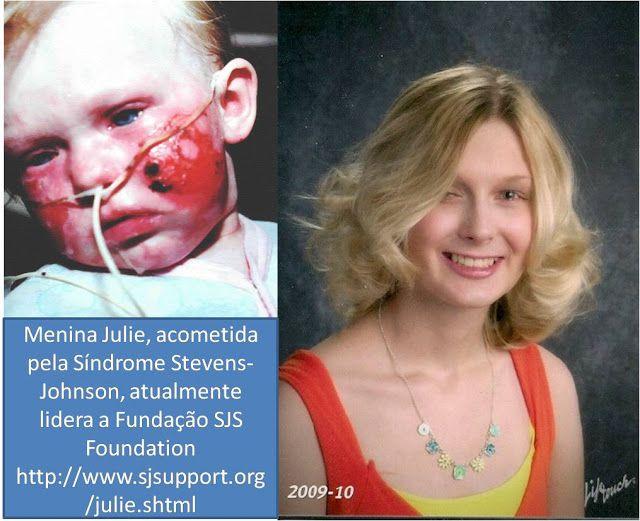 TDAH Crianças que Desafiam: TDAH - Carbamazepina e oxcarbazepina são as causas...