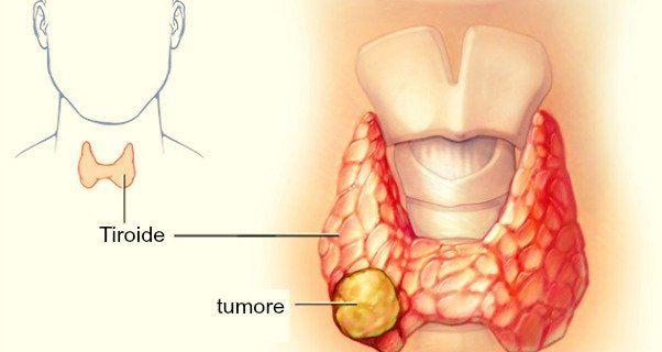 Recentemente i ricercatori hanno scoperto che questa tisana ha un potente effetto sulla tiroide. Gli scienziati hanno preso in considerazione 519 persone: un gruppo di 113 pazienti affetti da tumore della tiroide che è stato comparato ad un gruppo di 138 persone senza tumore e 268 pazienti
