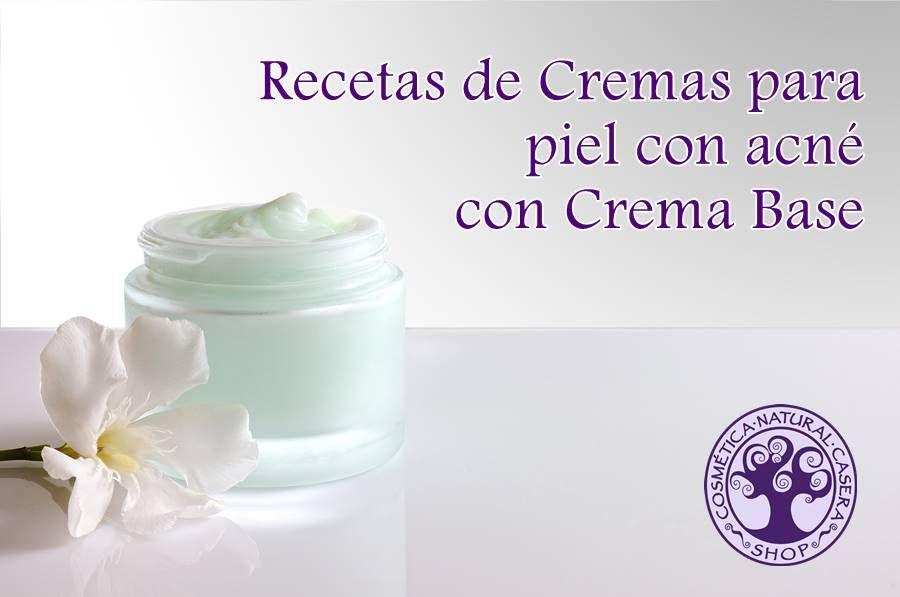 Receta Crema Para Piel Con Acné Con Crema Base Cremas Cosmetica Natural Casera Cremas Para El Acne