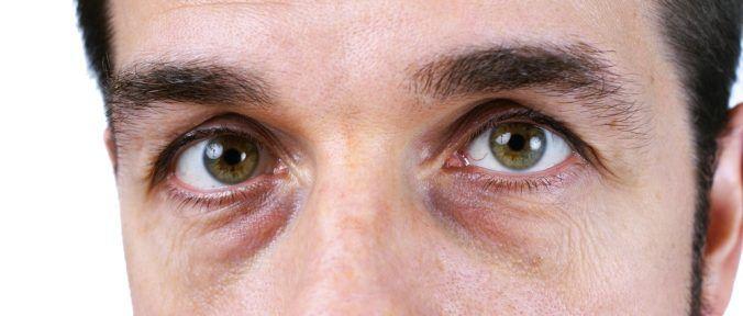 Olheiras: Sintomas, Causas e Tratamento - http://comosefaz.eu/olheiras-sintomas-causas-e-tratamento/