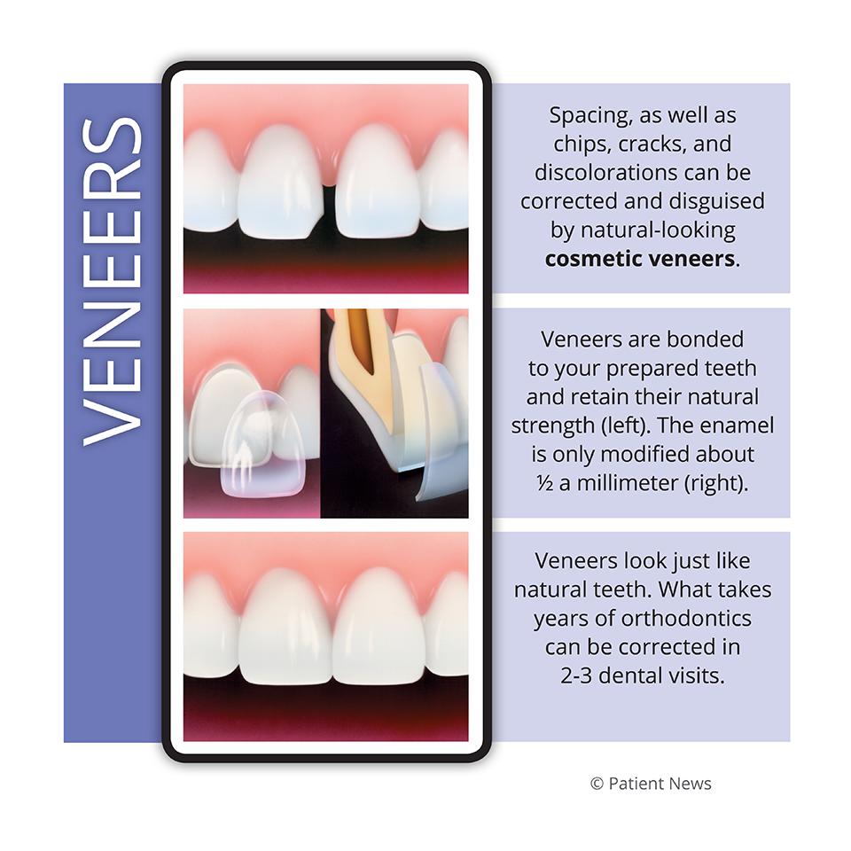 Aquatic Dental Crown Design Dentistofthestars Dentalcrownsbeforeandafterlasvegas Dental Crowns Cosmetic Veneers Dental