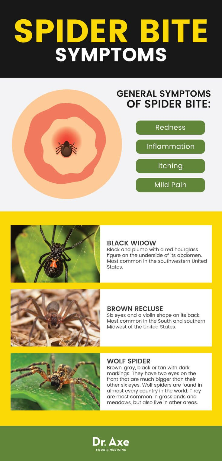 Spider Bite Symptoms Dr Axe