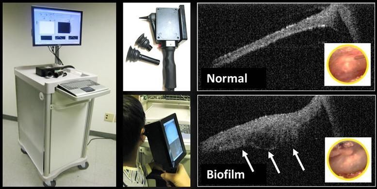 Nowhere to hide New device sees bacteria behind the