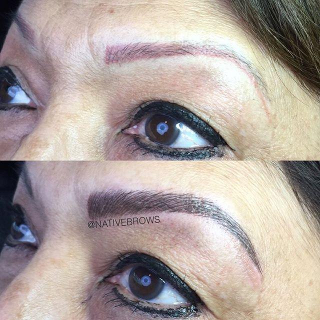 Color Correction Tattoo Removal Magic Brows Previously
