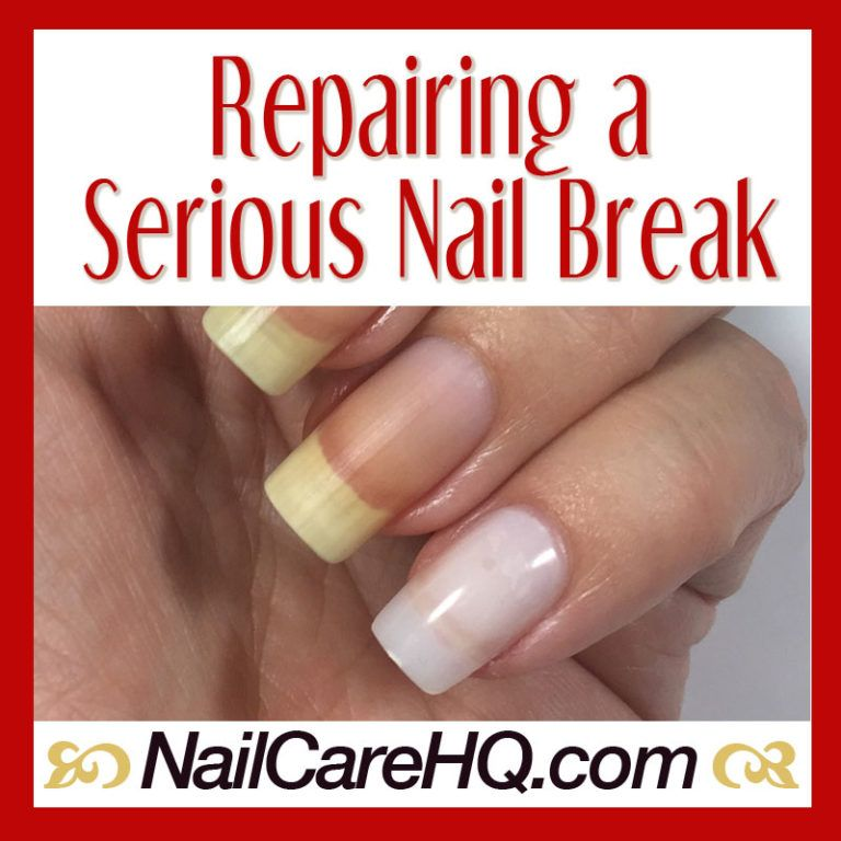 Broken Nail Repair - What To Do When It's Bad