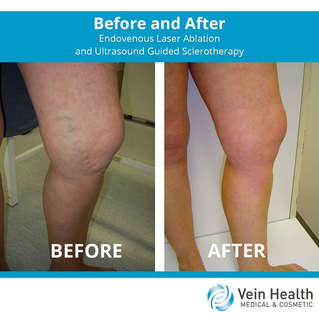 Endovenous Laser Ablation And Ultrasound Guided Sclerotherapy Produced These Fantastic Results Vein Health Sclerotherapy Vein Clinic