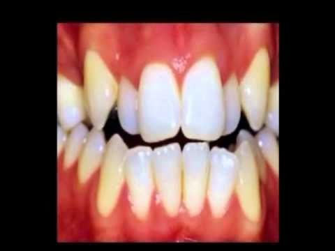 Lingual Braces Time Lapse Youtube With Images Lingual Braces