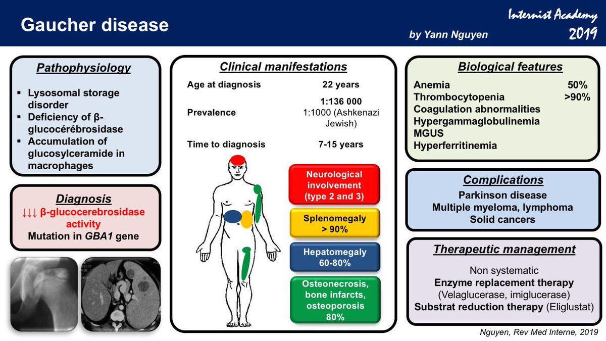 Medical School Gaucher Disease What To Know Gaucher S Disease Disease Medical