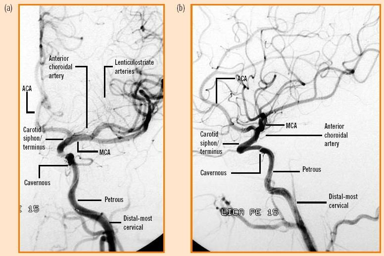 Internal Carotid Artery Segments Vascular Pinterest Internal