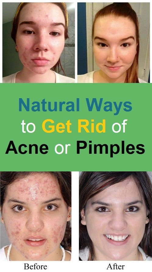 Natural Ways to Get Rid of Acne or Pimples #hairhowtoget