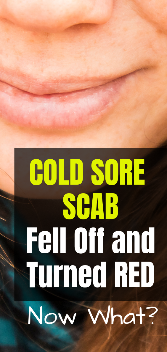 How To Get A Cold Sore Scab To Fall Off