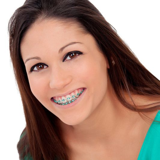 Dental braces adults