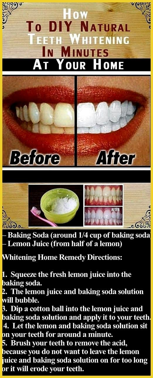 teeth whitening electric toothbrush teeth whitening with coconut oil teeth whitening pen before and after best teeth whitening toothpaste redd  teeth whitening electric toothbrush teeth whitening with coconut oil teeth whitening pen before and after best teeth whitening toothpaste reddit activated charcoal teeth whitening powder usa how much does teeth whitening cost at midwest dental teeth whitening led light ins #coconut #electric #teeth #teethwhiteningpendiy #toothbrush #toothpaste #whitening #howtowhitenyourteeth
