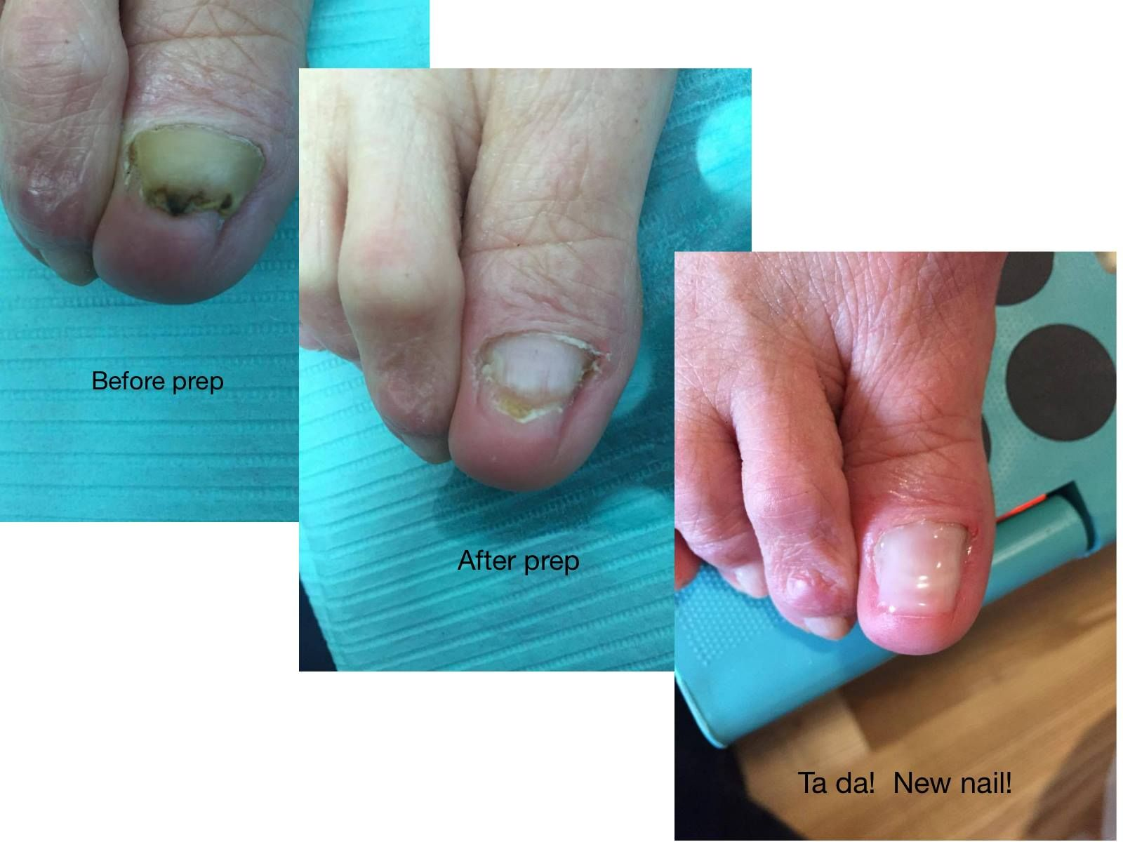 Don\'t be embarrassed by missing, damaged or fungal nails. I\'ll ...