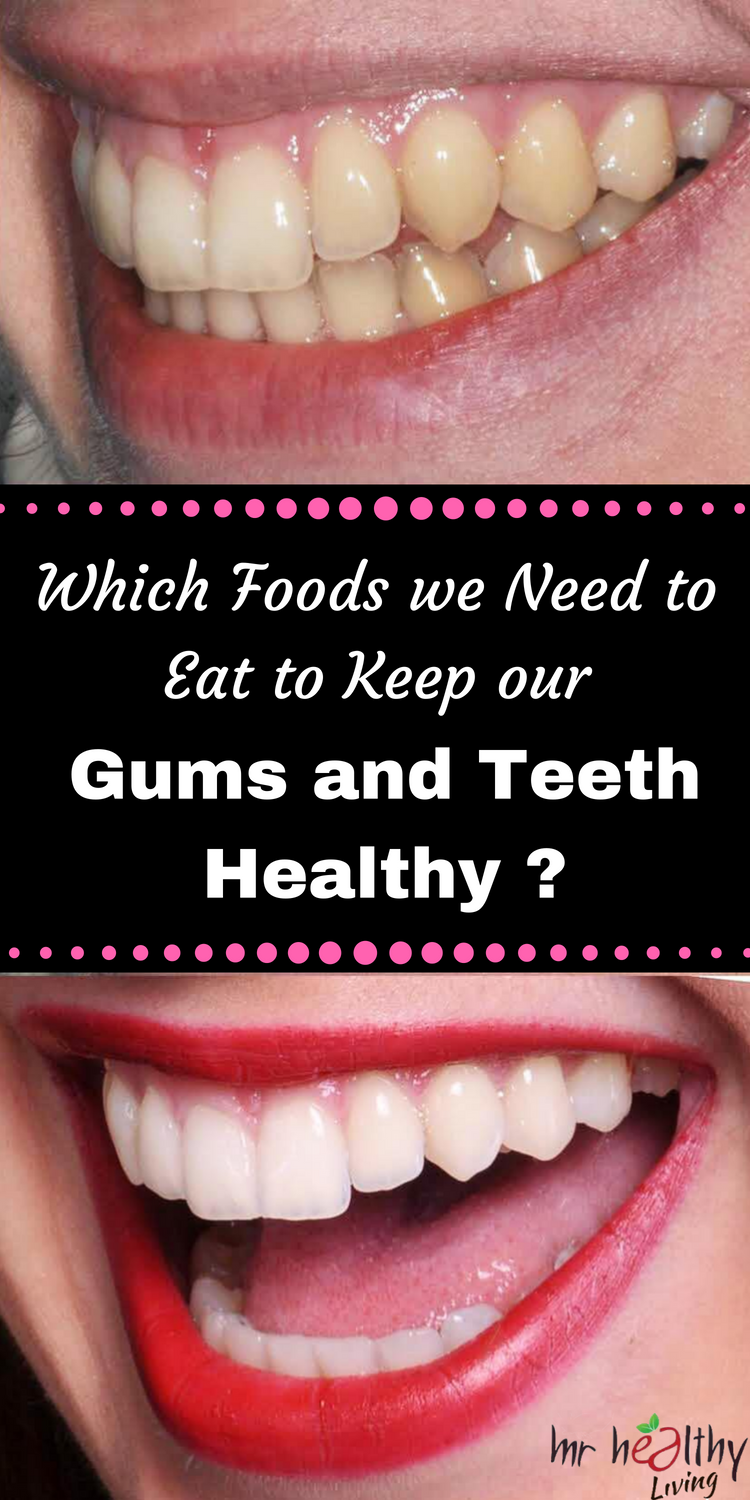 Which Foods we Need to Eat to Keep your Gums and Teeth