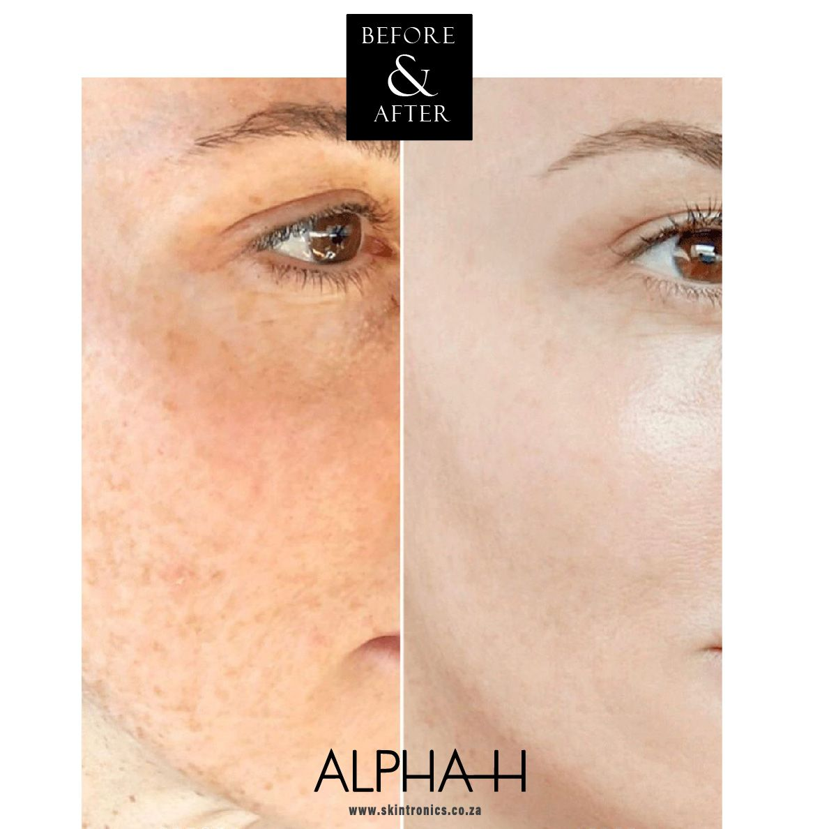 It Just Goes To Show What The Synergy Between Professional Treatments And An Excellent Home Skincare Regime Can Do These Resul In 2020 Skinc Luxury Skincare Skin Care