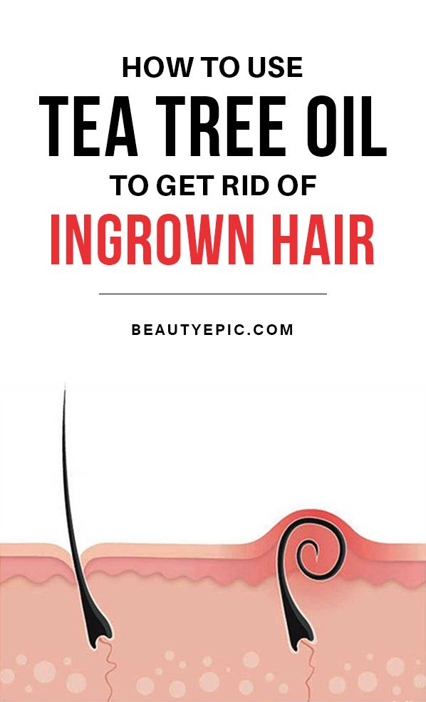 how effective is using tea tree oil for ingrown hair beauty