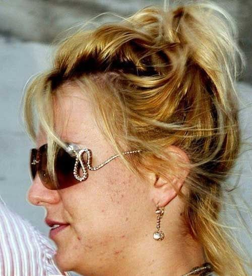 Actors Without Thyroid: Celebrities With Acne :Britney Spears