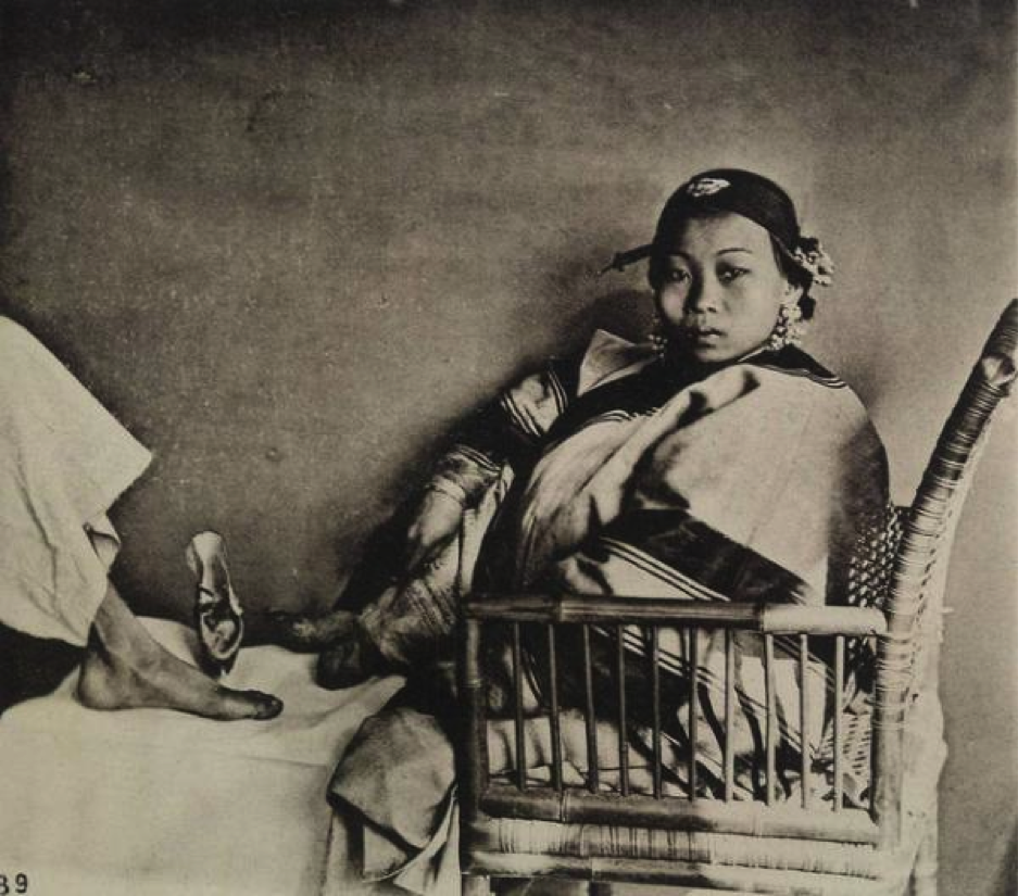 Rare Photographs Of Chinese Foot Binding From The 1800s