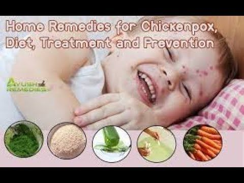 1 Home Remedies For Chicken Pox Youtube Cure Toenail Fungus