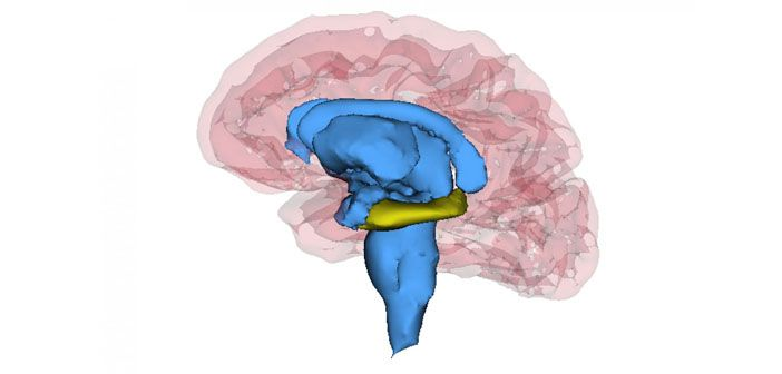 The brains of people with recurrent depression have a significantly the brains of people with recurrent depression have a significantly smaller hippocampus the part of the brain most associated with forming new memories ccuart Images