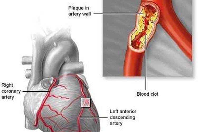 Signo de colesterol alto