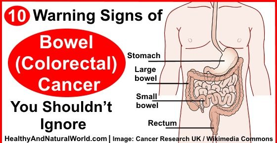 10 Warning Signs of Bowel (Colorectal) Cancer You Shouldn't Ignore -  Excluding skin cancers, colorectal cancer is the third most common cancer  diagnosed in ...