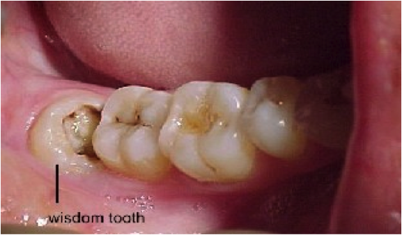 Cost Of Wisdom Teeth Removal (With images) Wisdom tooth
