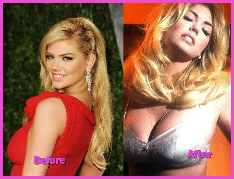 Kate upton breast implants
