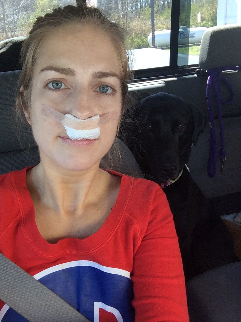 My Experience with a Septoplasty & Sinus Surgery | Life of Blyss | I