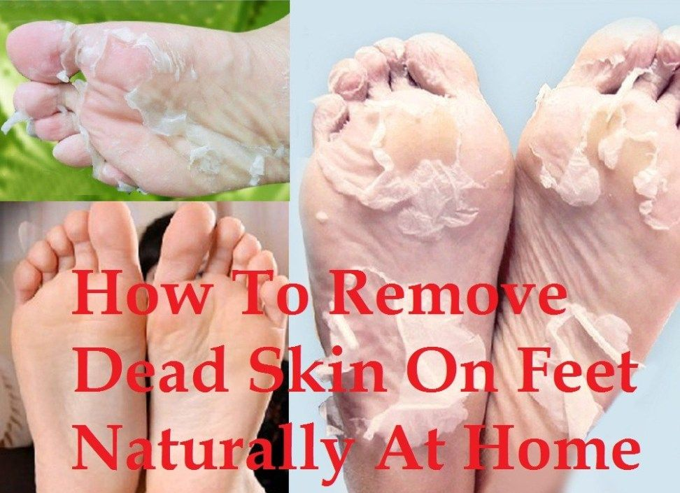 How To Get Rid Of Dry Cracked Feet Fast Naturally At Home Remedies More Youtube Dry Skin On Feet Dry Cracked Feet Dry Skin Care