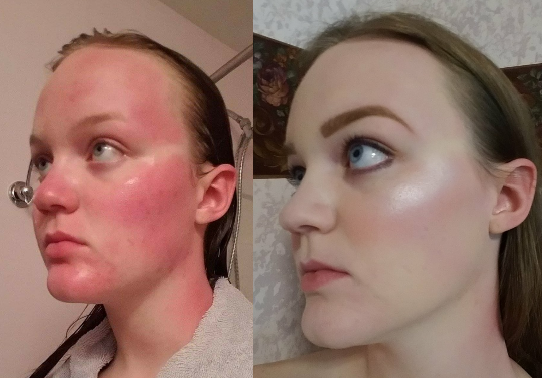 This Before & After Foundation Is Incredible